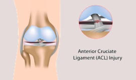 [Illustration of an injured knee] Click the button below for patient education about orthopedic conditions